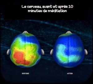 Effets méditation cerveau